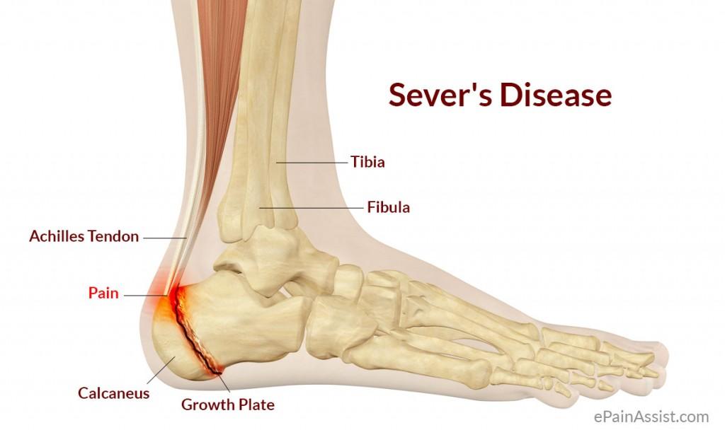 Understanding Sever's Disease and Gymnastics - allgymnasts.com